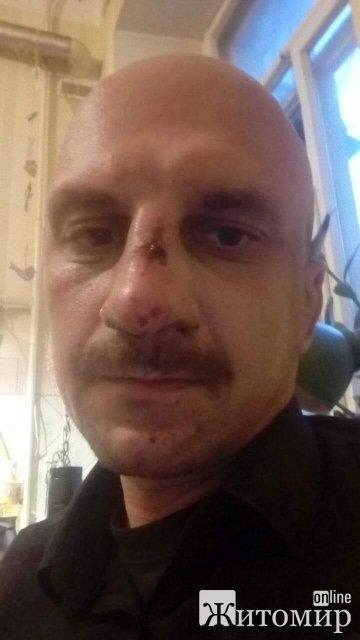 У Києві патрульні напили на житомирського музиканта? ФОТО