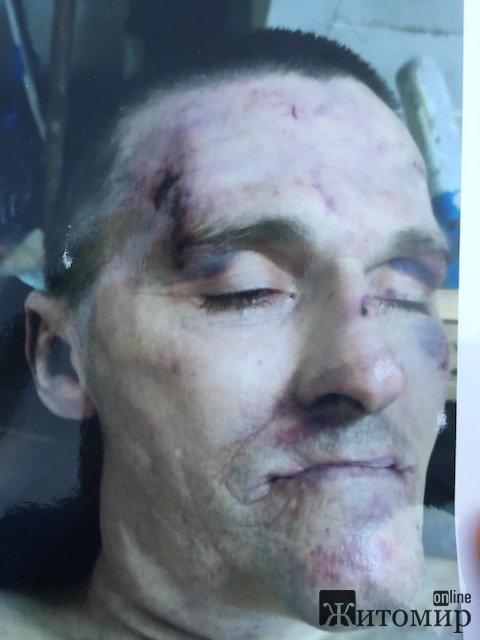 З'явилося фото валютника, якого убили у Житомирському слідчому ізоляторі. ФОТО 18+